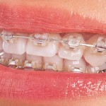 9 sinais de que você precisa usar Aparelho Dentário