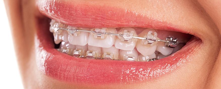 c6223892b 9 sinais de que você precisa usar Aparelho Dentário