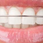 Aparelhos de contenção pós-tratamento ortodôntico: saiba o que é, como cuidar e por quanto tempo usar